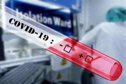 Sprawdzanie temperatury w celu zapobiegania rozprzestrzeniania się epidemii koronawirusa w opinii PUODO